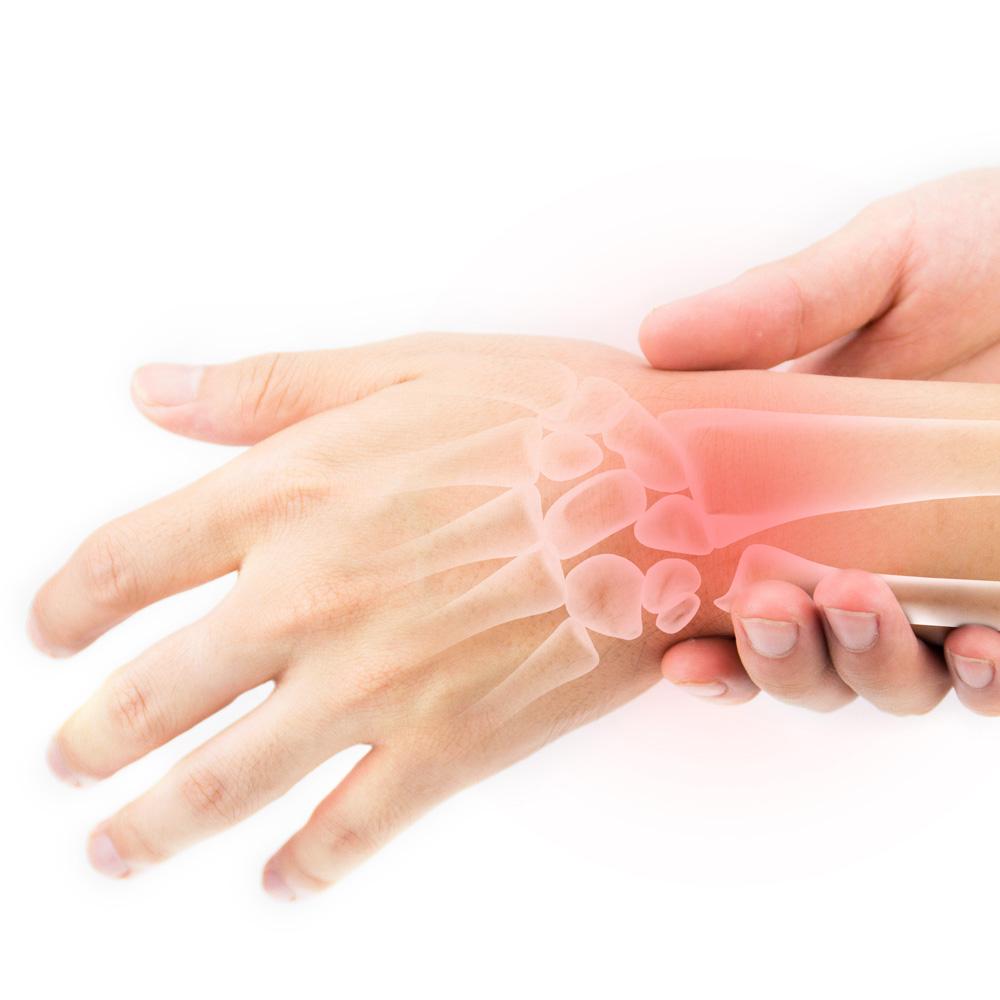 Finger Sprain