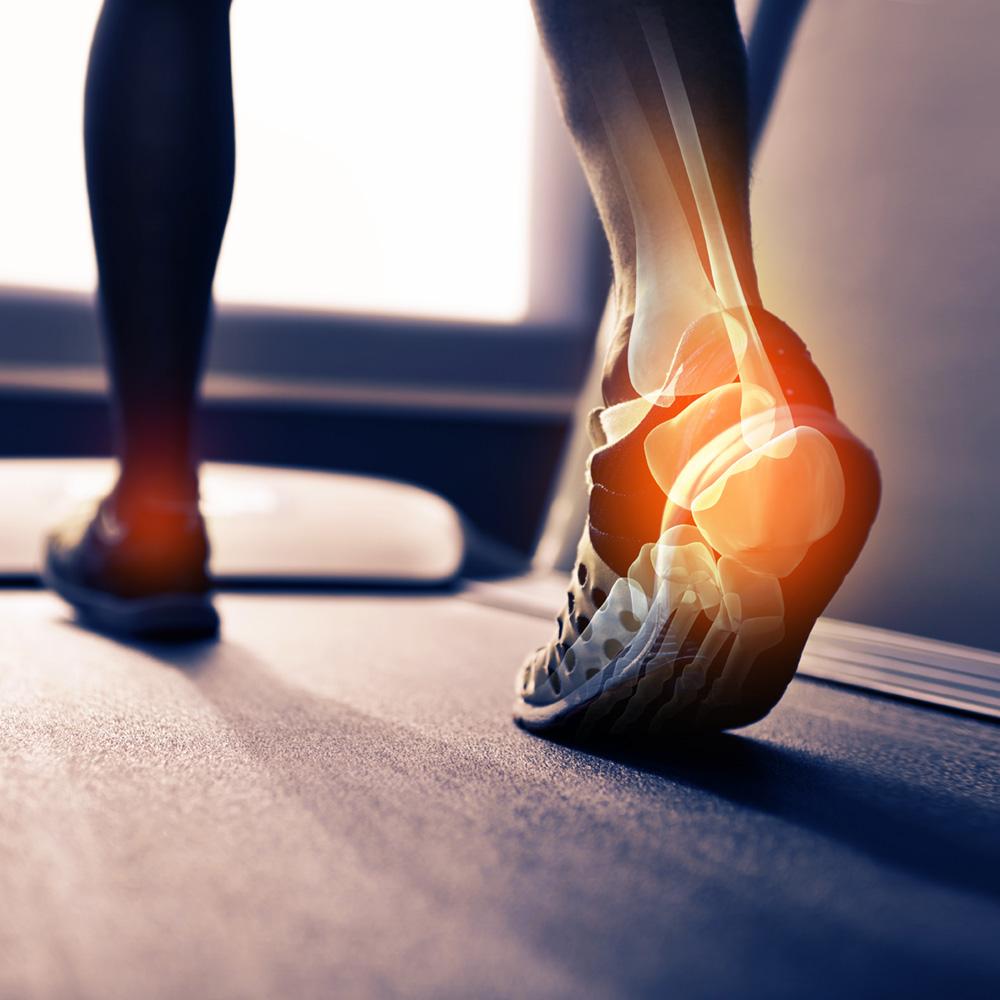 Neuropathy of the Foot (Peripheral Neuropathy)
